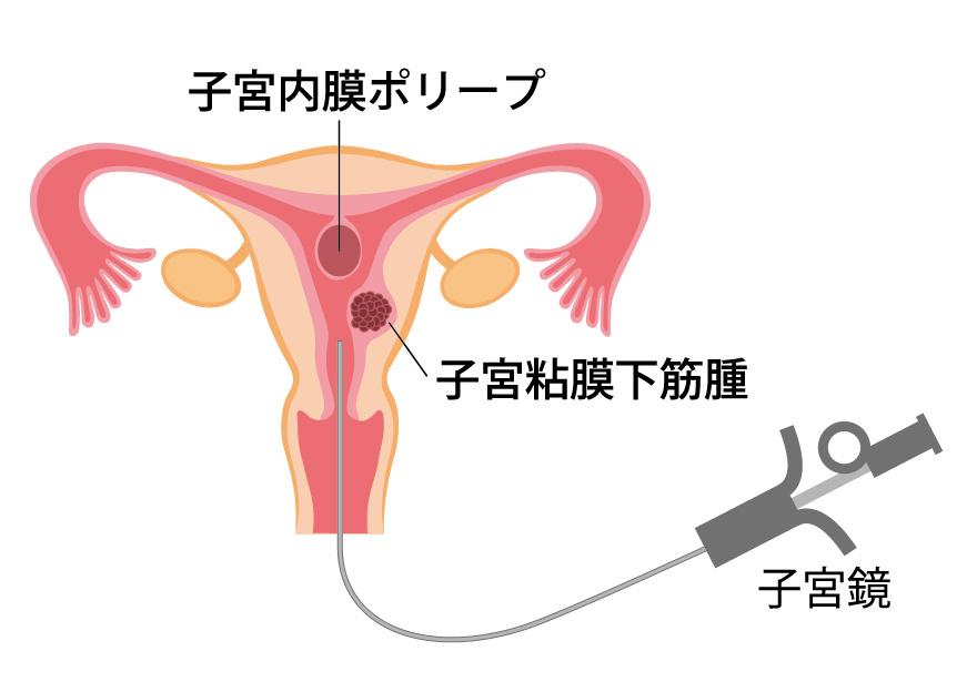 子宮 内 膜 ポリープ 原因